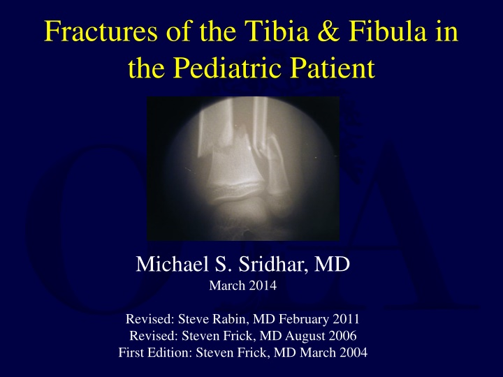 fractures of the tibia fibula in the pediatric