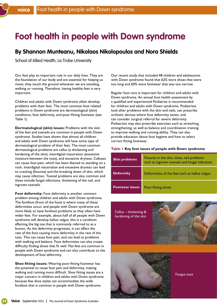 foot health in people with down syndrome