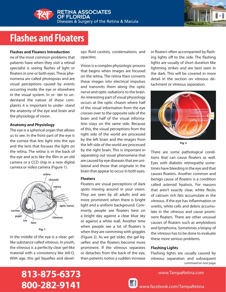 flashes and floaters