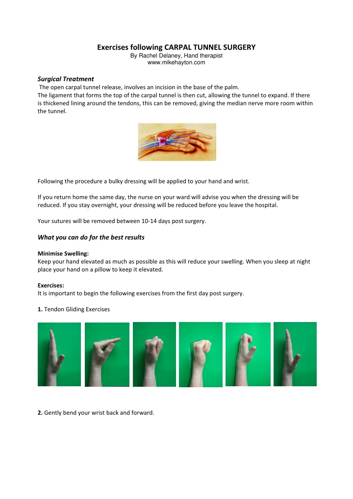 exercises following carpal tunnel surgery